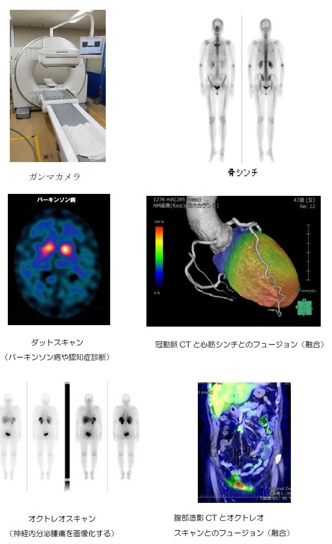 核医学RI検査.jpg