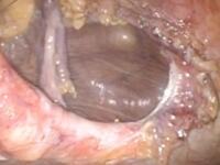 膀胱ヘルニアを合併した腹壁瘢痕ヘルニア